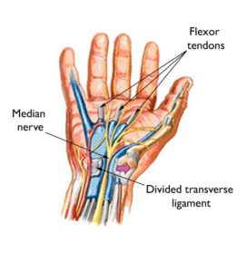 Transverse section of carpal tunnel