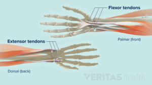 Overview of Wrist Tendonitis