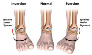 Inversion Sprain vs. Eversion Ankle Sprain Image