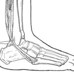 Image of peroneal tendonitis