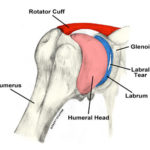 shoulder anatomy showing rotator cuff and labrum