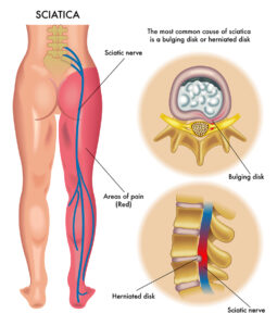 medical illustration of symptoms of the sciatica physical therapy